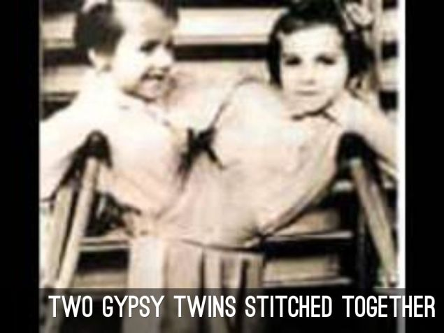 mengele-twin-gypsies-sewn-together