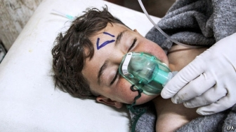 syrias assad chem weapon victim